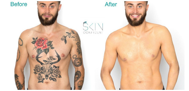 Skin Camouflage? Expertise. Knowledge. Experience… Discover here in this blog post how Babs Forman delivers life changing skin transformations. Get the Look from www.londonskincamouflage.co.uk/skin-camouflage/ FACEBOOK | TWITTER | INSTAGRAM Have […]